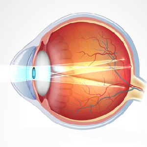 что такое астигматизм - схема глаза