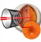 Лечение диабетической ретинопатия