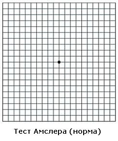 Тест Амслера (норма)