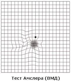 Тест Амслера (ВМД)