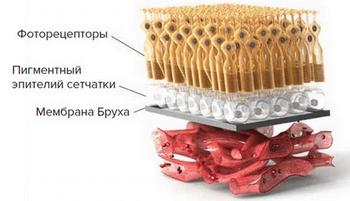 Механизм развития ВМД