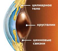 катаракта мультифокальная линза